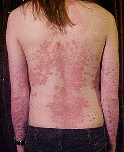 Al bambino atopic la dermatite che trattare a bambini