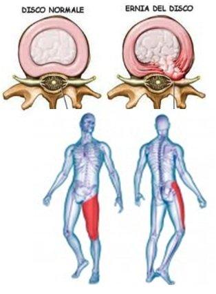 Kifoz spina dorsale di reparto cervicale