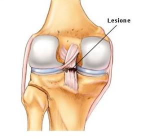 lesione 1