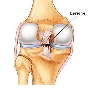 lesione al menisco; sintomi menisco